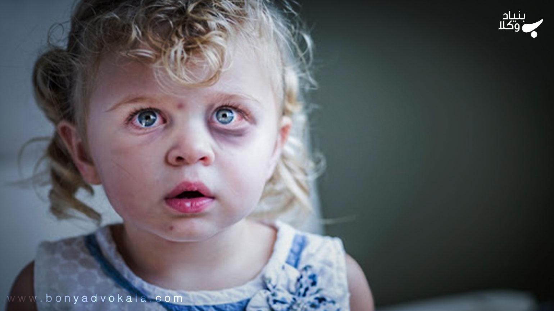 جرم کودک آزاری و مجازات آن