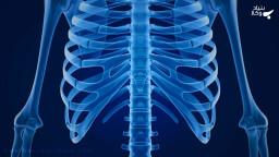 دیه شکستن، در رفتن و ترک خوردن استخوان دنده چیست؟